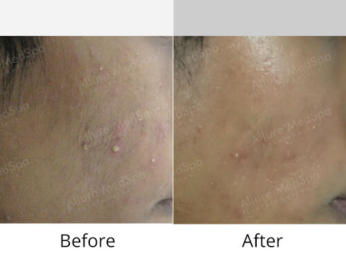 Skin Peels Before and After Gallery at Affordable Cost in Mumbai, India
