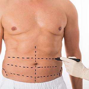Standard Tummy Tuck Surgery Mumbai