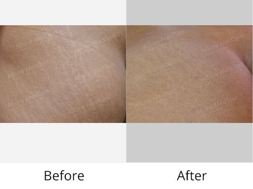 stretch mark reduction before after mumbai India