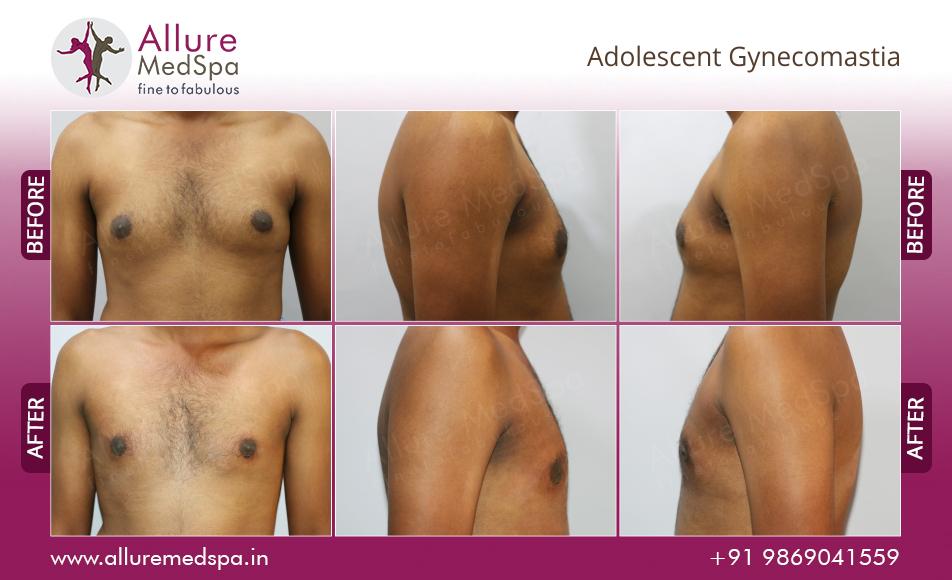 Male Breast Reduction Mammaplasty Surgery Adolescent Gynecomastia Before After Images mumbai, India