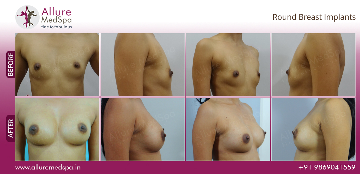Round Breast Implants Before and After Images at Transparent Price in Mumbai, India