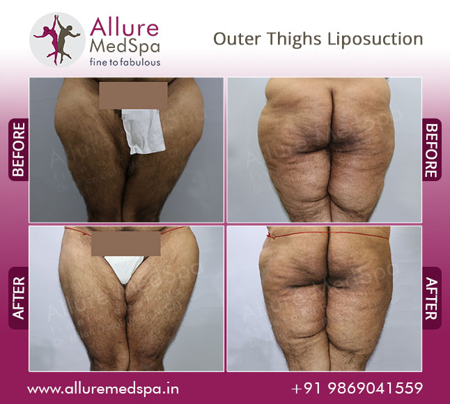 Outer Thighs Laser Liposuction Before and After Pictures by Celebrity Cosmetic Surgeon Dr. Milan Doshi in Mumbai, India