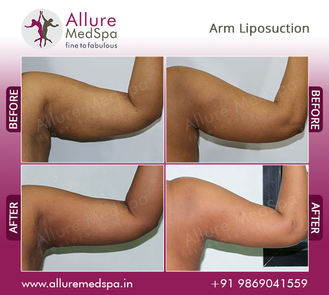 Arm Laser Liposuction Before and After Photos at affordable price in Mumbai, India