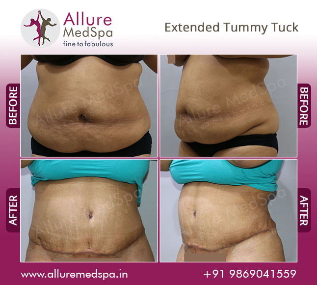 Female Extended Tummy Tuck Before and After Pictures at Reasonable Cost in Mumbai, India