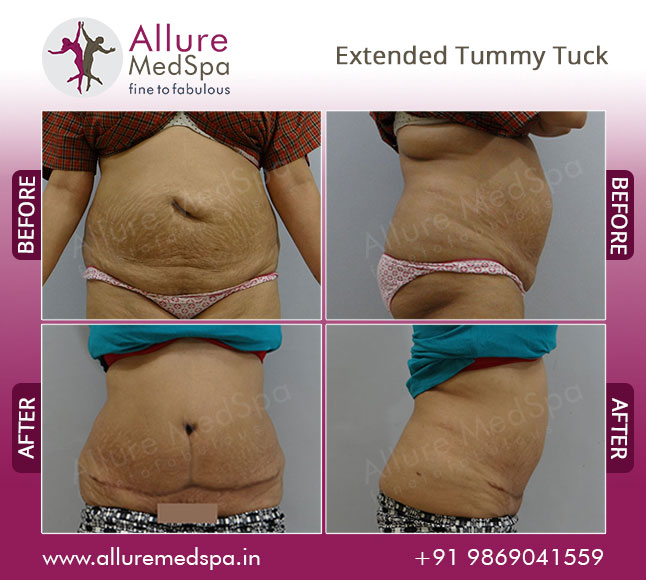 Female Extended Abdominoplasty Before and After Photos at Affordable Price in Mumbai, India