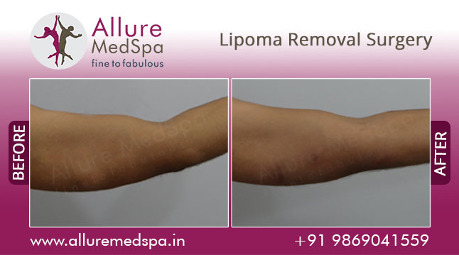 Lipoma Removal Surgery Before and After Images at Transparent price in Mumbai, India