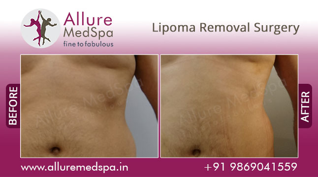 Lipoma Removal Surgery Before and After Images by Celebrity Cosmetic Surgeon Dr. Milan Doshi in Mumbai, India