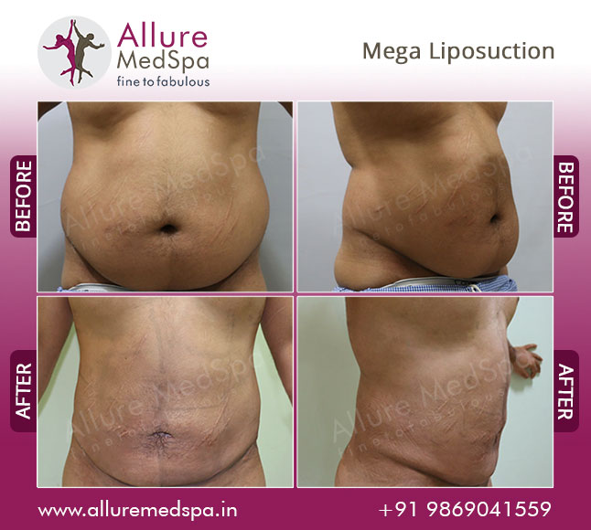 Mega Laser Liposuction Before and After Pictures at Affordable Cost in Mumbai, India