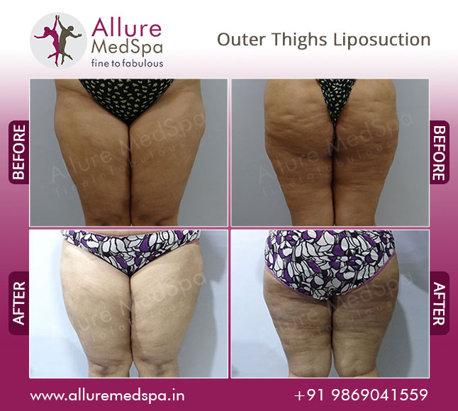 Saddlebag Tumescent Liposuction Before and After Gallery by Celebrity Cosmetic Surgeon Dr. Milan Doshi