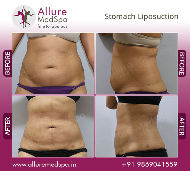 Stomach Power Assisted Liposuction Before and After Photos at Affordable Price in Mumbai, India