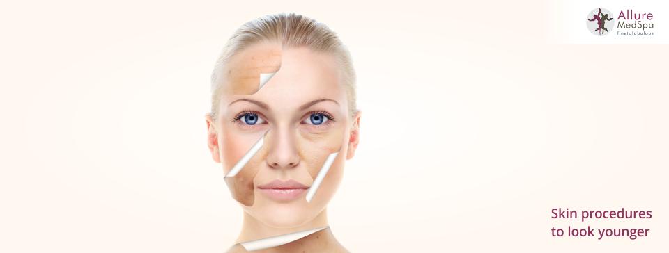 Allure cosmetic treatment