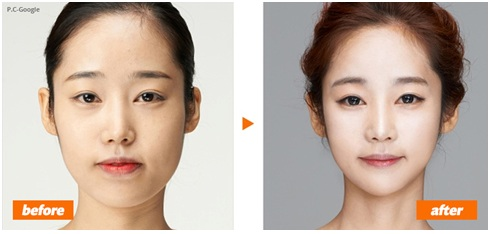 Cosmetic Surgery Korea Before and After Image