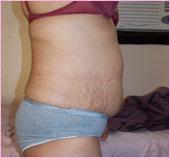 Right View of Tummy Tuck / Abdominoplasty