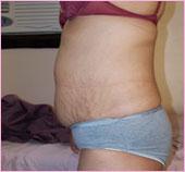 Left View of Tummy Tuck / Abdominoplasty