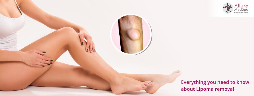 Alluremedspa - Lipoma Removal Surgery