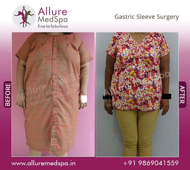 Gastric Sleeve Surgery Before and After Photos at Affordable Cost in Mumbai, India