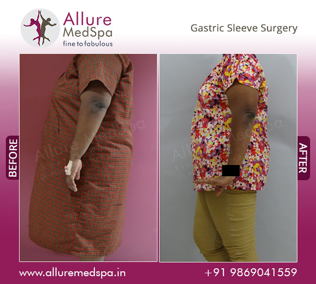 Gastric Sleeve Surgery Before and After Pictures at Transparent Price in Mumbai, India