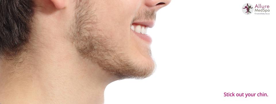 Alluremedspa - Chin Augmentation