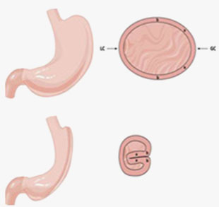 Gastric Imbrication Surgery in Mumbai, India