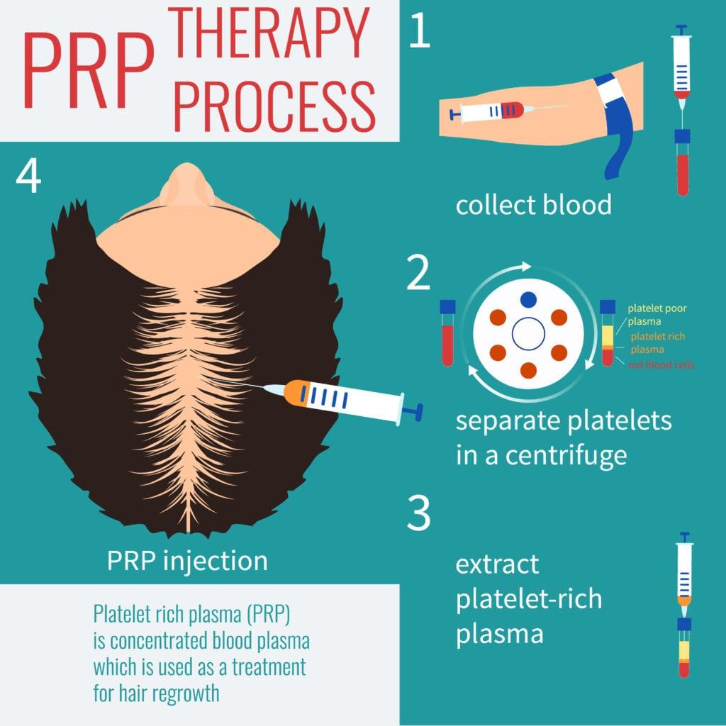 Hair PRP Treatment in Mumbai, India