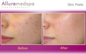 Skin Peels Before and After Gallery by Celebrity Cosmetic Surgeon Dr. Milan Doshi in Mumbai, India
