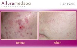 Skin Peels Before and After Images at Affordable Cost in Mumbai, India
