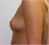 Left View of Breast Implants | Breast Augmentation