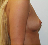 Right View of Breast Implants | Breast Augmentation
