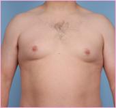 Gynecomastia Front View