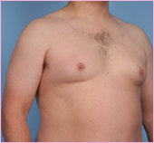Gynecomastia Left 1 View