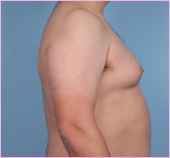 Gynecomastia Left 2 View