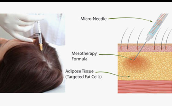 Hair Mesotherapy Treatment in Mumbai, India
