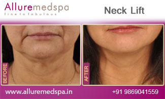 Neck Lift Surgery Before and After Pictures in Mumbai, India