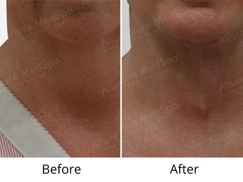 Neck Lift Before and After Images in Mumbai, India