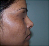 Rhinoplasty Left View