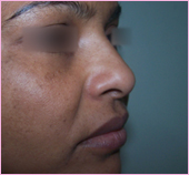 Rhinoplasty Oblique View 1