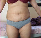 Front View of Tummy Tuck / Abdominoplasty