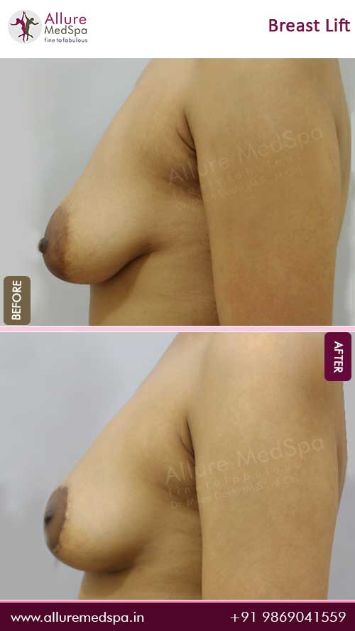 Breast-Lift-Before-After-10