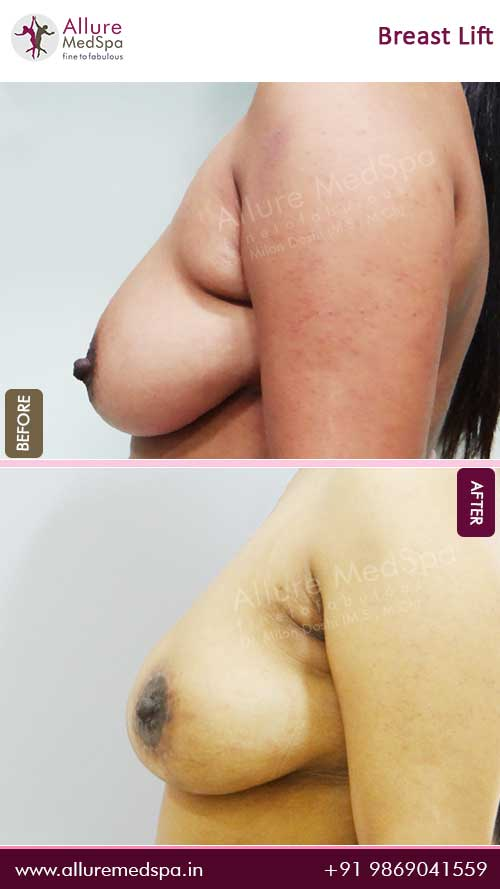 Breast-Lift-Before-After-4