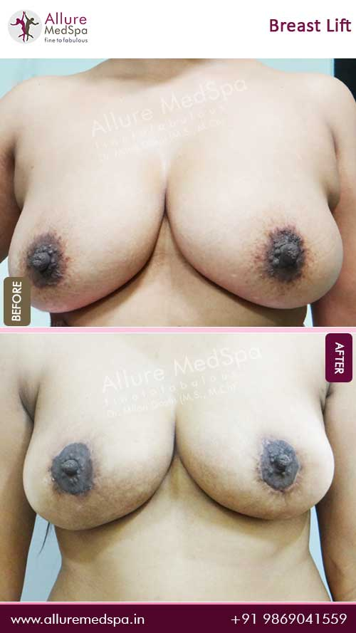 Breast-Lift-Before-After-5