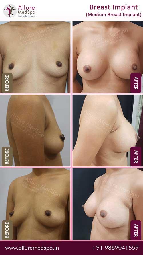 Medium-Breast-Implant-Before-After-photos-mumbai-india