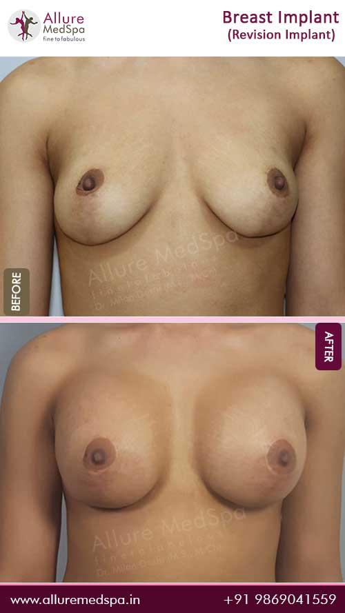 Revision Breast-Implant-Before-After-gallery-mumbai