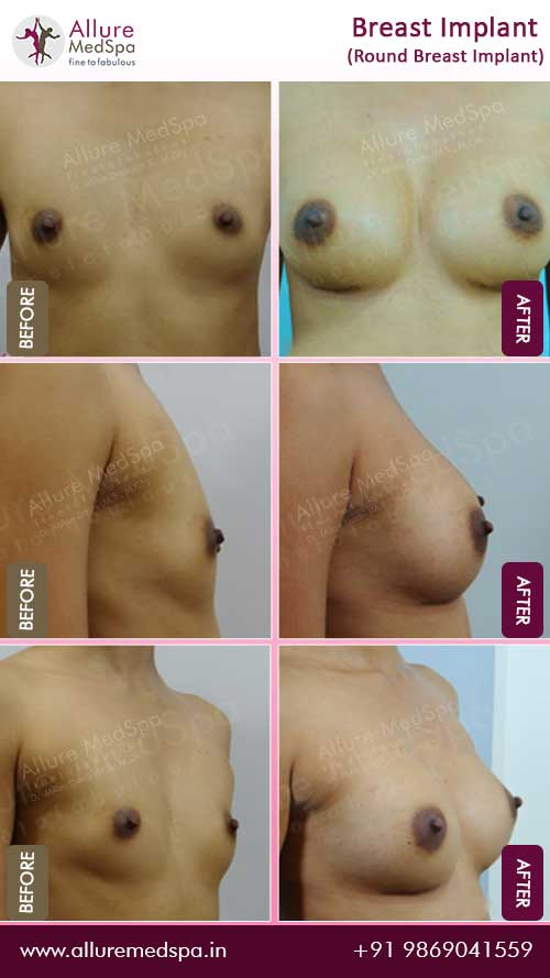 Round-Breast-Implant-Before-After-images-mumbai
