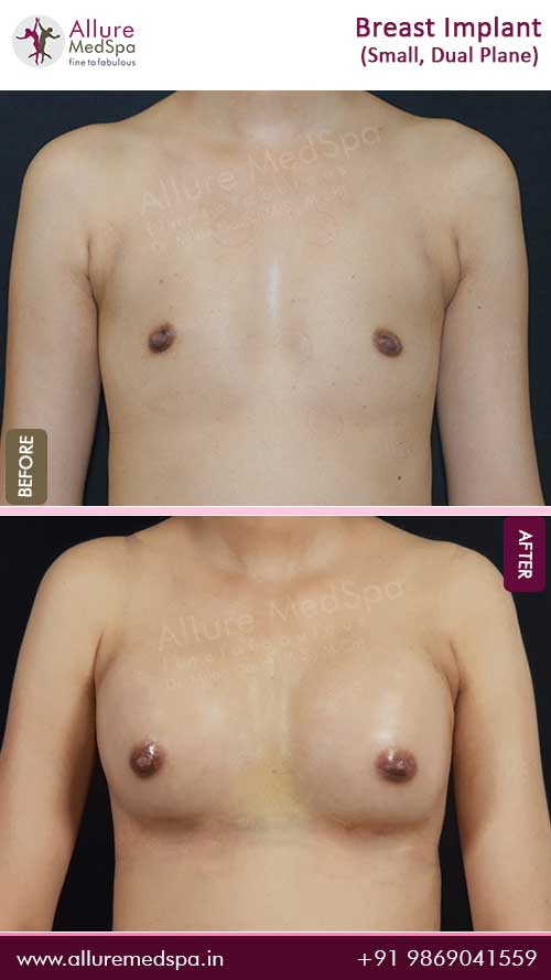 Small Tight Breast Implants Surgery Before and After Images in Mumbai, India
