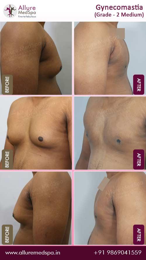 gynecomastia_surgery_cost_gynecomastia_surgery_in_mumbai