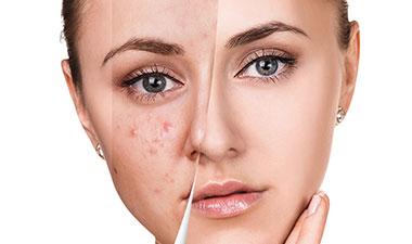 Acne Treatments in Mumbai, India