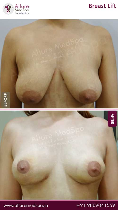 Breast-Lift-Before-After-13