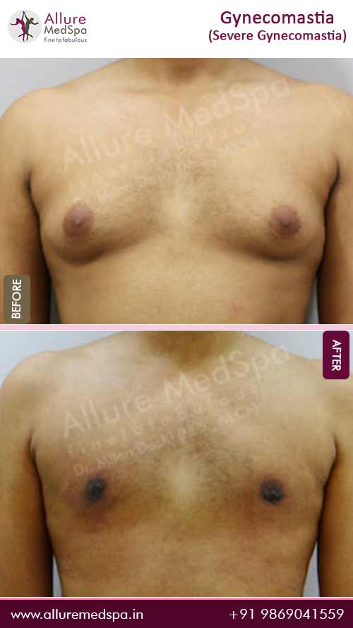 Severe-Gynecomastia-Before-After-Results-mumbai