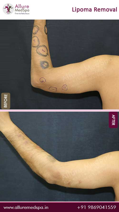 Arm-Lipoma-Removal-Before-After-Photo-Mumbai-India