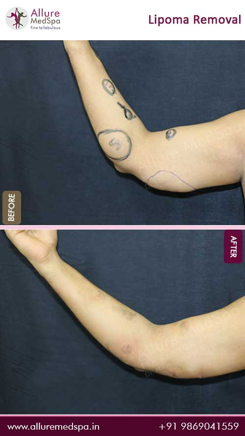 Arm-Lipoma-Removal-Before-After-Photo-Mumbai